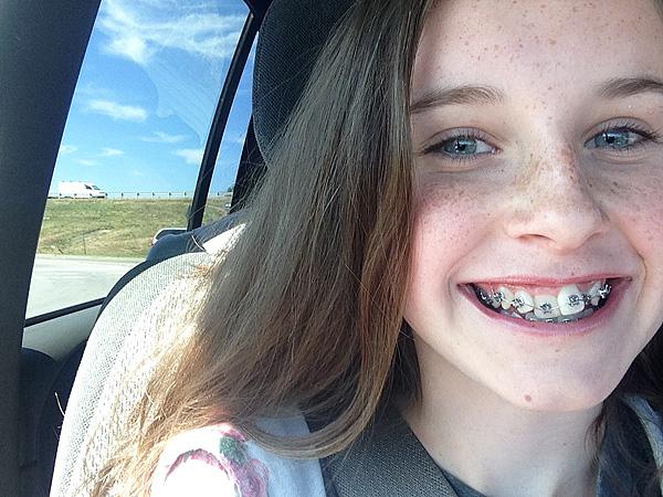 #2 braces